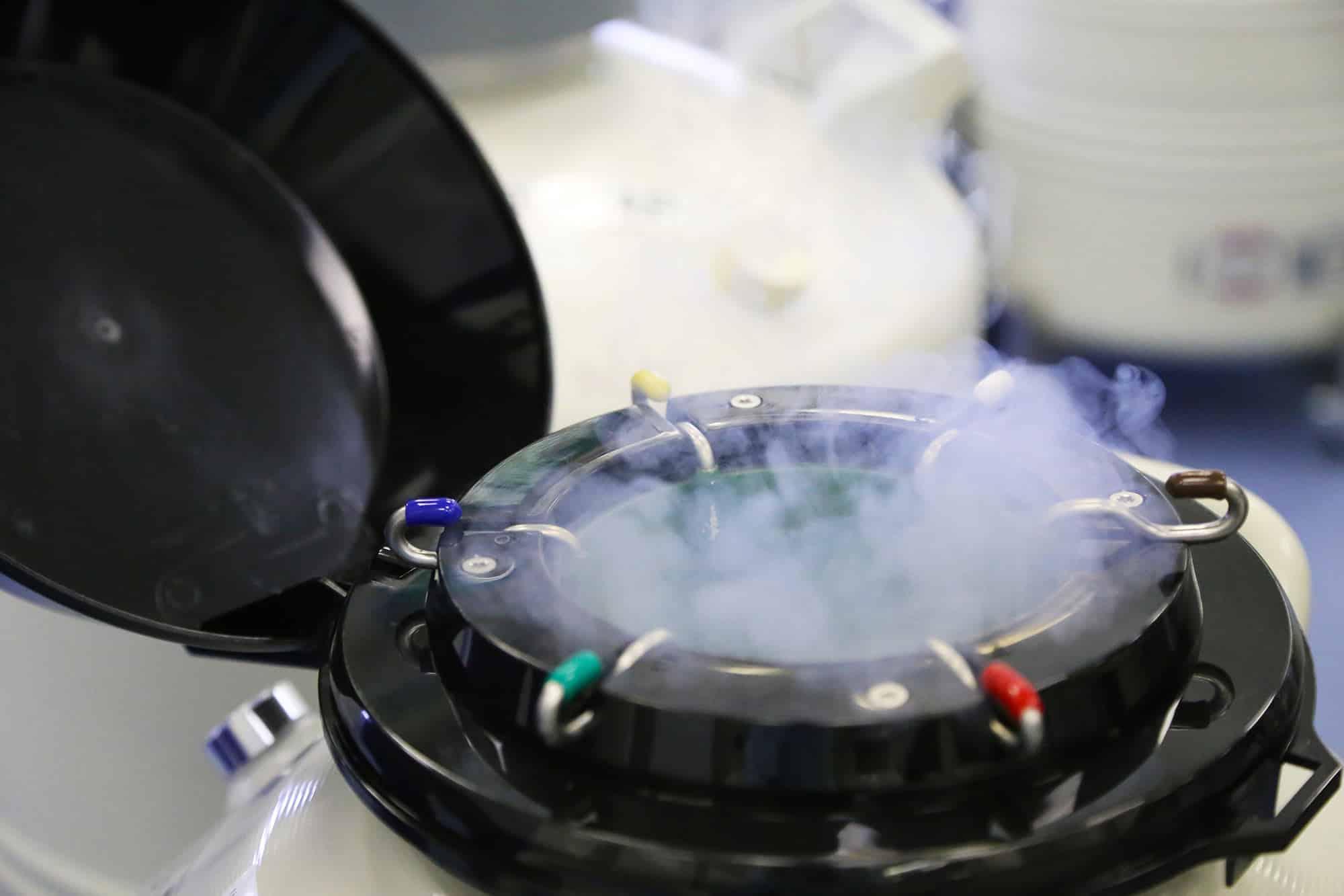 fertilitetssjekk-fertilitetssjekk oslo-fertilitetsklinikk-fertilitetsklinik oslo-fertilitetstest menn-fertilitetstest kvinner-fertilitetssenteret-ivf-assistert befruktnin